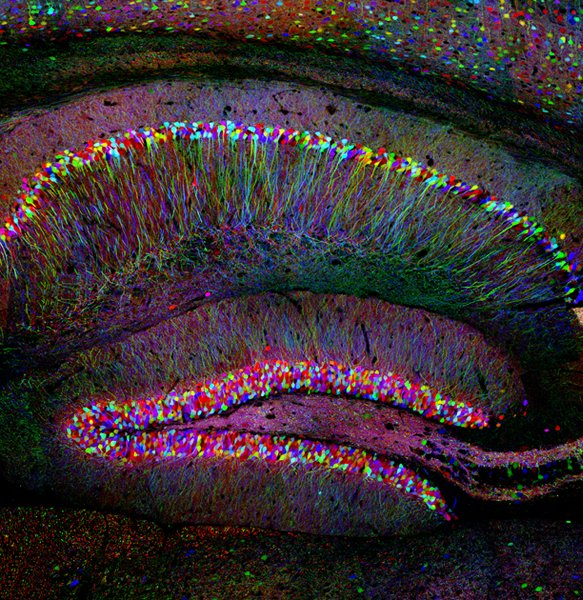 the hippocampus, a brain area that plays a key role in forming memories